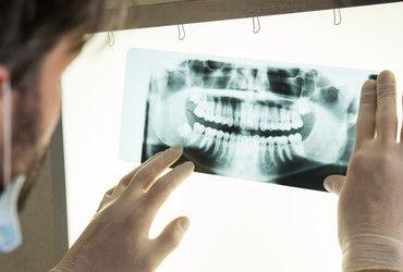 Odontoiatria – Protesi dentali